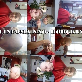 LINFOMA  não-Hodgkin - Câncer