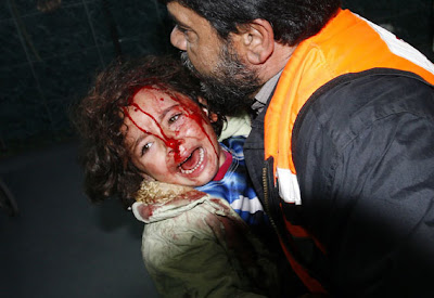 1 January 2009: A wounded Palestinian child screams as she arrives to the al-Shifa hospital after an Israeli air strike in Gaza City.