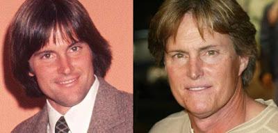 Bruce Jenner Plastic Surgery report
