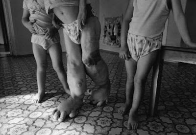 http://3.bp.blogspot.com/_ri_Q82HDXw0/TMbJ-3do6HI/AAAAAAAAAHY/vJPNbfl39p4/s1600/chernobyl.jpg