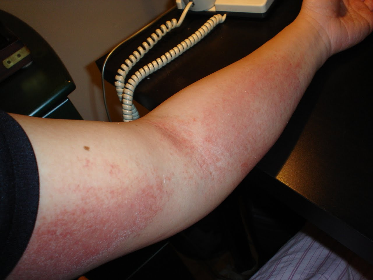 Arm Rashes Pictures