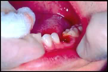 and tooth 2 after your tooth and surrounding structure become numb he