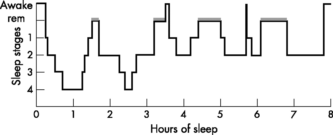 the architecture of sleep and the Understanding non-rem and rem sleep stages sleep architecture represents the structure of your sleep and is generally composed of a somewhat cyclical pattern of.