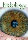 Iridology