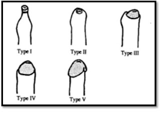 como agrandar el anillo prepucial