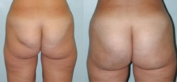 The Buttocks Before & After Weight Loss
