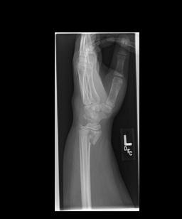 the power of sharing: smith's fracture