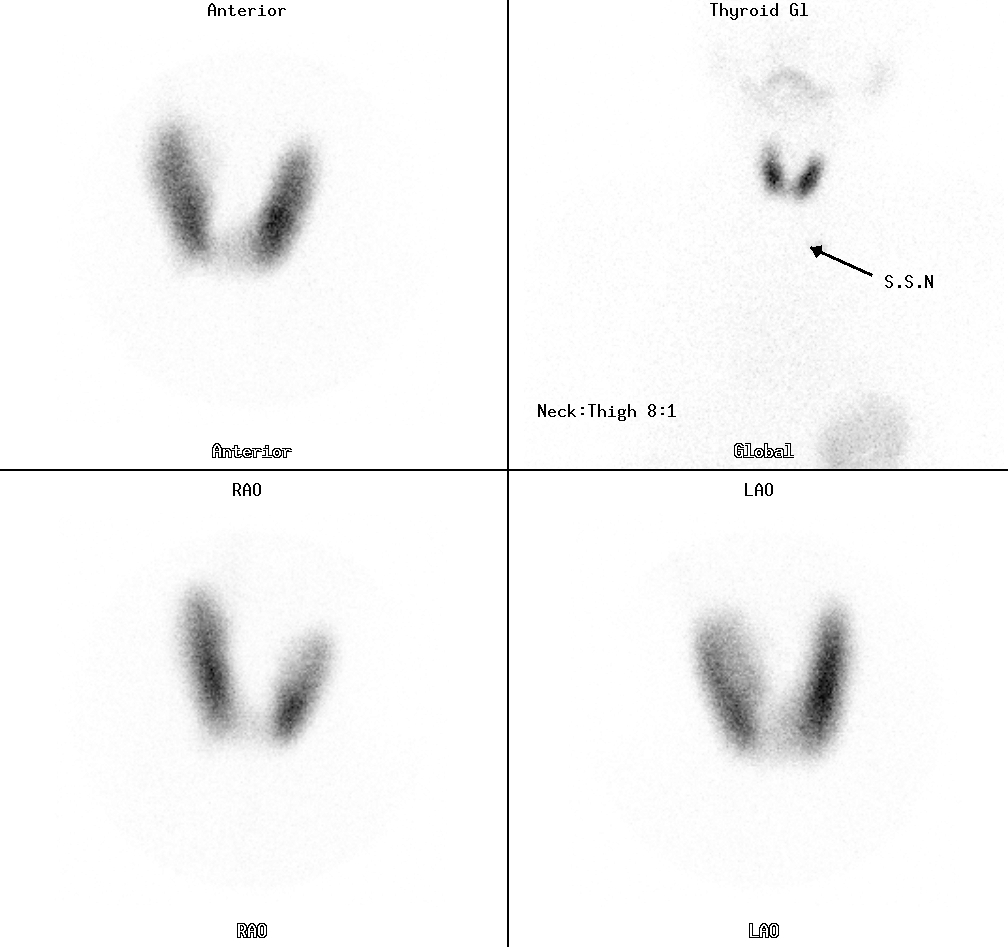 nuclear medicine amp pet thyroid scintigraphy paediatric