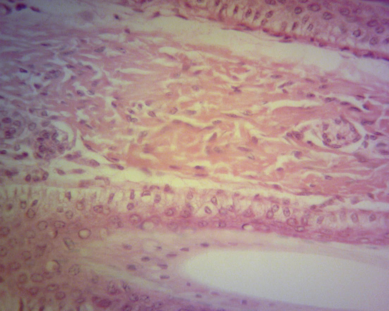 fibrous tissue Fibrosis is the formation of excess fibrous connective tissue in an organ or tissue in a reparative or reactive process this can be a reactive, benign, or pathological state.