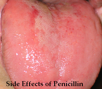 Penicillin Side Effects Side Effects Of Penicillin. Electric Companies In Dallas Texas. College Grants For Police Officers. Masters Of Public Administration. Gartner Magic Quadrant Itsm Voip Did Number. Online Hvac Courses Free Schrader Funeral Home. Online Shopping Software Backup Server Hosting. Texas A&m Corpus Christi Nursing. Lawyers In Indianapolis Tax Attorney Illinois