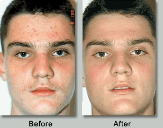 I cured my acne with vitamins how to get rid of acne scars in 2 how to get rid of acne scars in 2 daysnatural at home acne treatmenthow to get rid of acne on your face chest and back tips for you ccuart Image collections