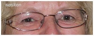 Atopisk eksem øyne