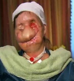 Charla Nash Chimp Attack Survivor Reveals Disfigured Face On Oprah Show