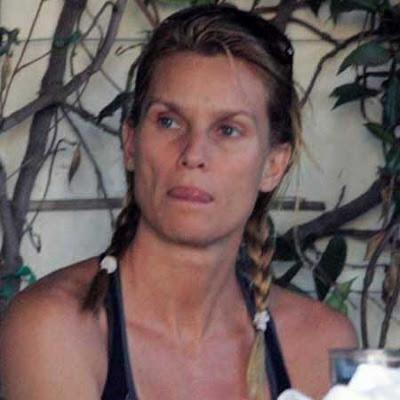 Nicolette Sheridan skin care
