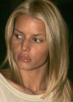 Jessica Simpson lips plastic surgery