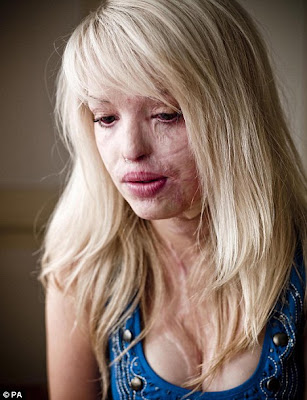 Katie Piper Before And After. welcome folks, this time my hands want to