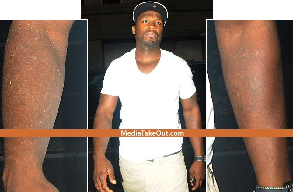50 cent had all the tattoos on his arm removed what his For50 Cent Tattoos Removed