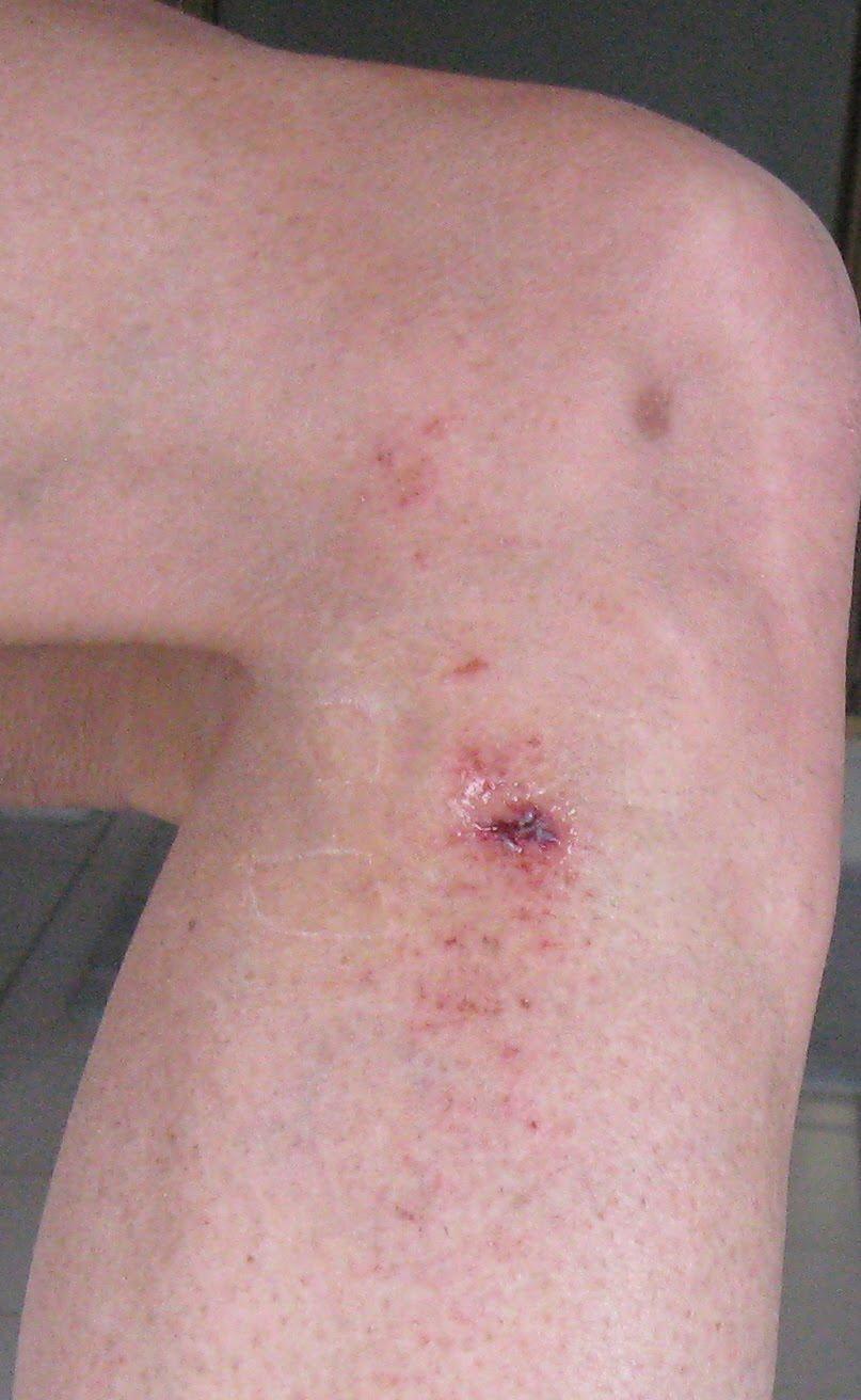 how to fix road rash on skin