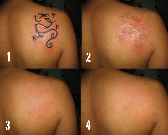 3 Best Tattoo Removal Approaches » 3 Best Tattoo Removal Approaches 113