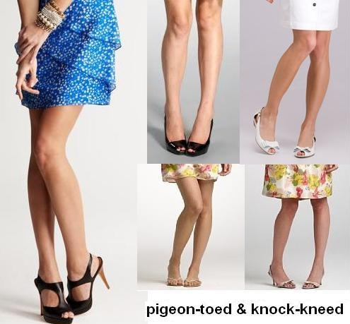 Pigeon Toed Celebrities What do yout think of ...