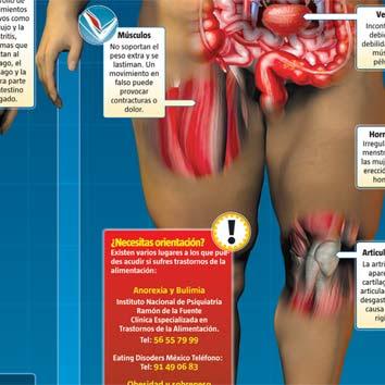 Flacos y gordos - infografia - Oliver Leon - Dibujando por Dinero