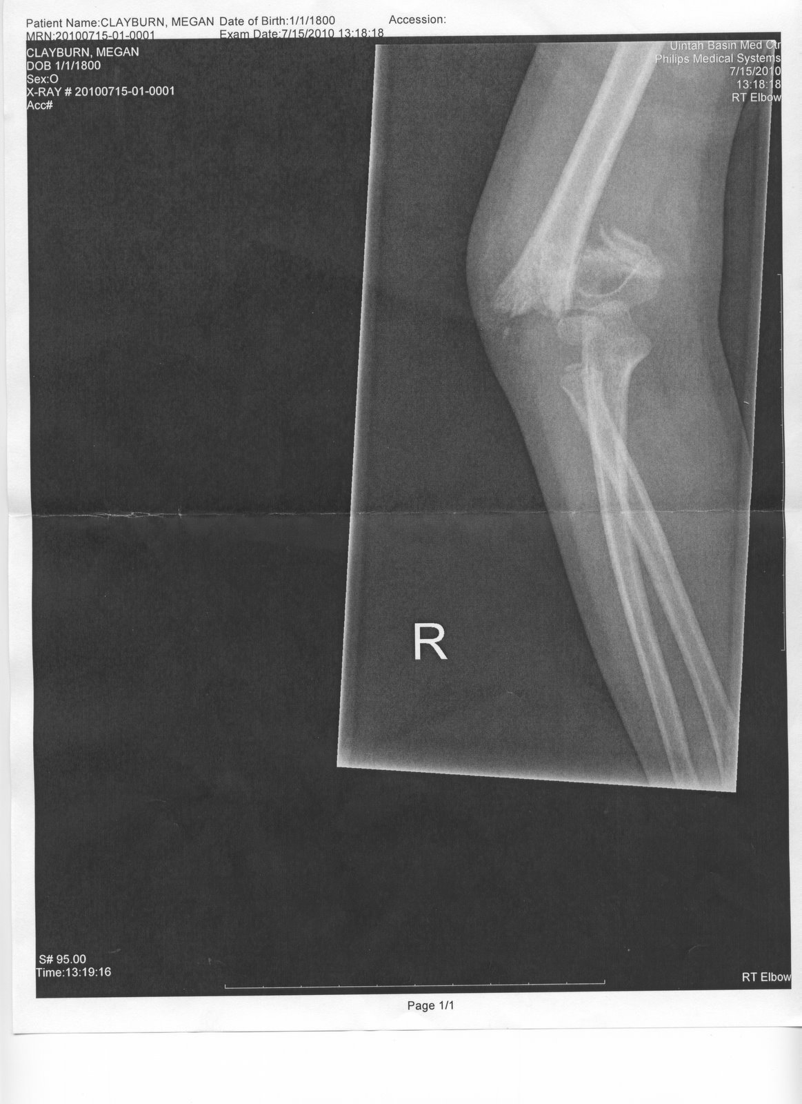 Displaying 18> Images For - Broken Arm X Ray Clipart...