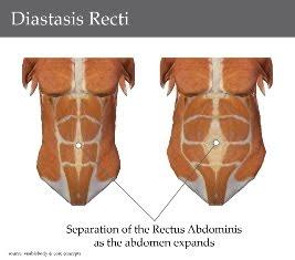 diastasis-recti.jpg