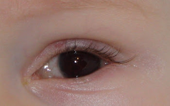 10 days, showing hyphema