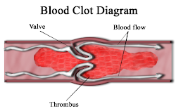 Denger of Blood Clot