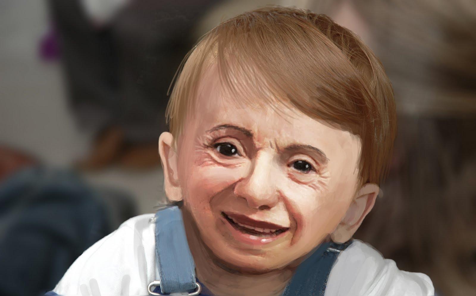 deformed people -#main