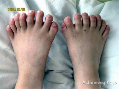A Boy with 31 fingers and toes in China