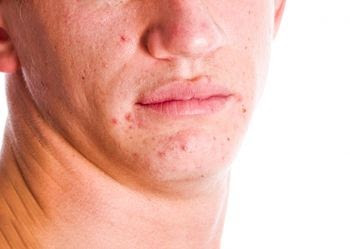 How to use hydrogen peroxide in acne Scar