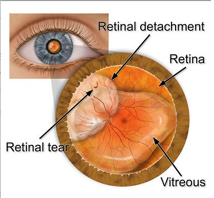 Blurred vision Flashes of light An increase in the number of spots or    Vitrectomy Retinal Detachment