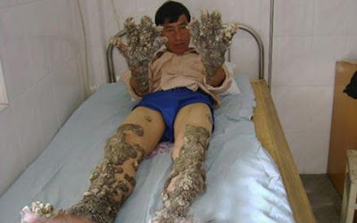 """The Sweetest Chill: THE """"TREE MAN"""" MAKES FULL RECOVERY"""