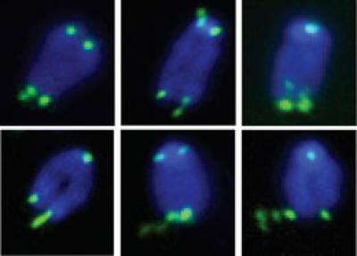Fragile telomeres.