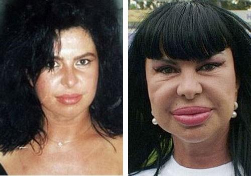 фото операций до и после хейлопластики