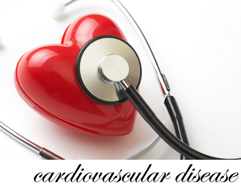 an introduction of heart disease Introduction throughout the the comparatively low rate of heart disease in france despite a diet that includes plenty of butter and cheese has become known as.