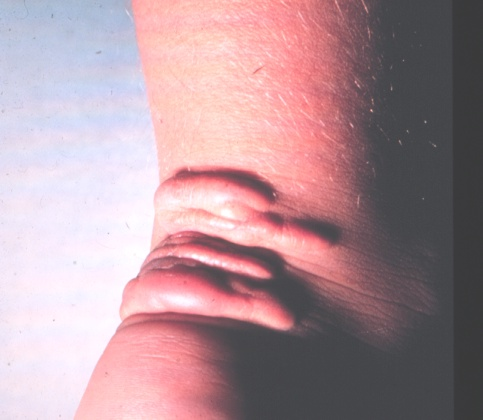 Tendon Xanthoma Clinical signs in medi...
