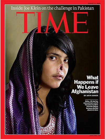 Афганская девушка Биби Айши, которую изуродовал муж-талиб, отрезав ей.