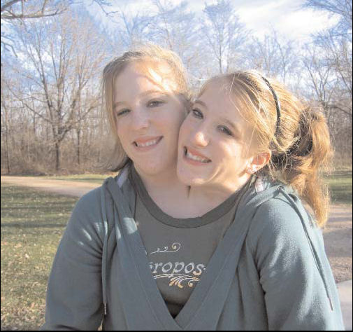 in my UNIQUE world: Abby and Brittany Helsen, Amazing Life