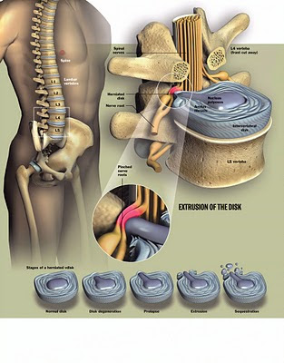 Боль в поясничном отделе позвоночника у женщин лечение