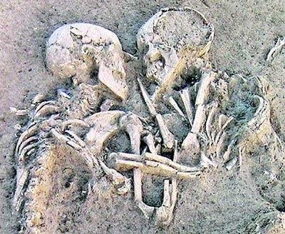 Como+se+llaman+los+huesos+de+la+mano