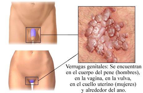 Remedios para las fisuras rectales, anales o del ano