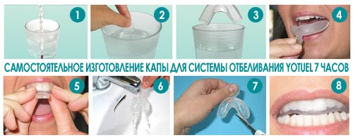 Как в домашних условиях отбелить быстро зубы в домашних условиях
