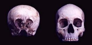 El cráneo de starchild: El niño de las estrellas Stardchild-craneo1