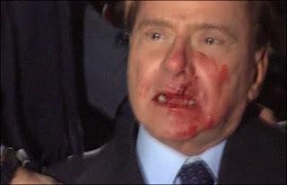 سيلفيو برلسكوني بعد الهجوم عليه وهو ينزف
