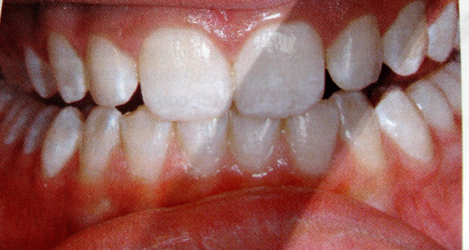Baby weißer Punkt auf Zahn   wer-weiss-was.de