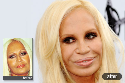Mighty Lists 15 Bad Celebrity Plastic Surgeries