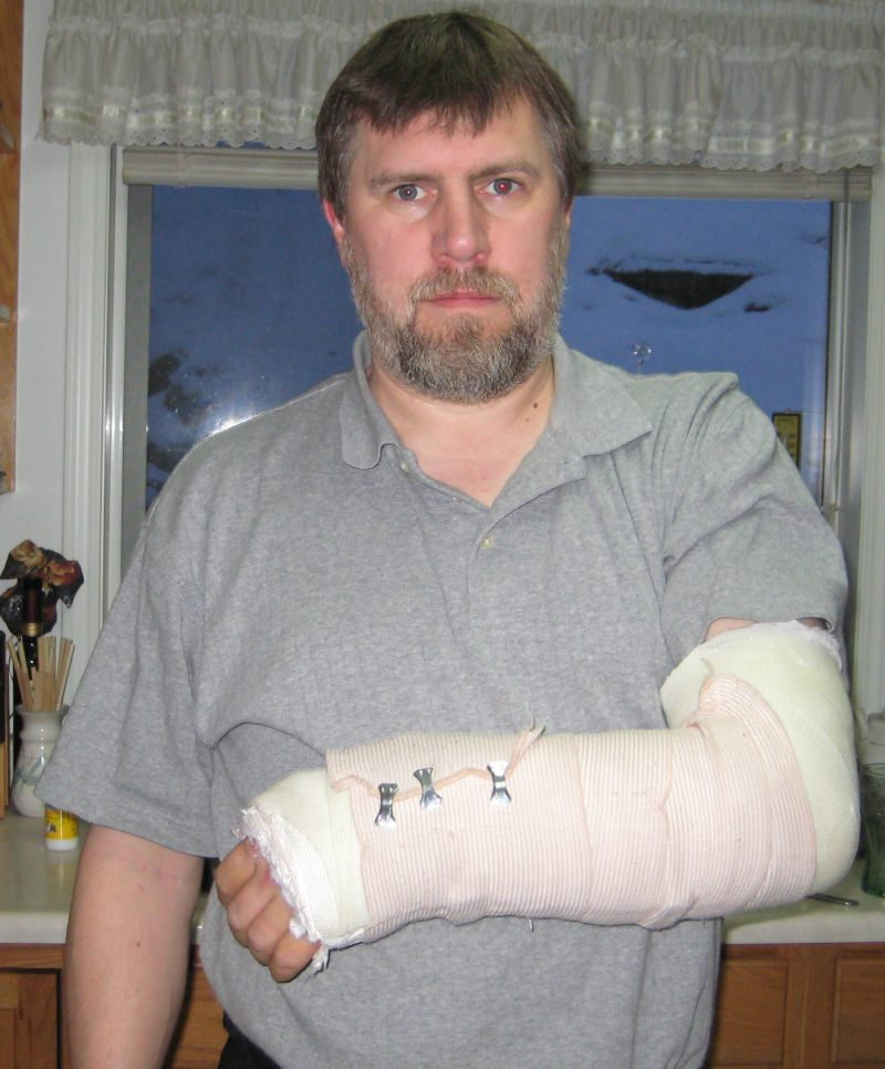 Broken Arm-3.bp.blogspot.com