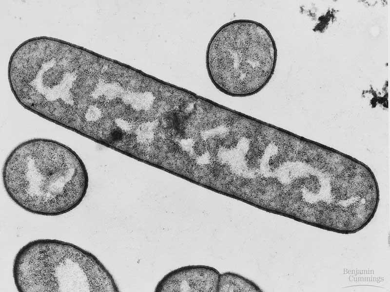 celula procariota y eucariota. de célula procariota